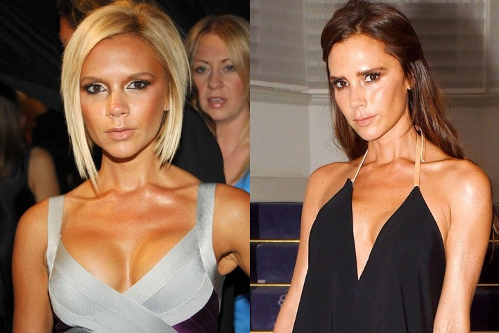 Celebrities Who Removed Their Breast Implants— Before-and ...